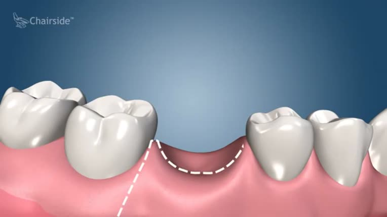 Dental Implant Procedure Two Stage Sunshine Smile Designs Family Cosmetic And Implant Dentistry